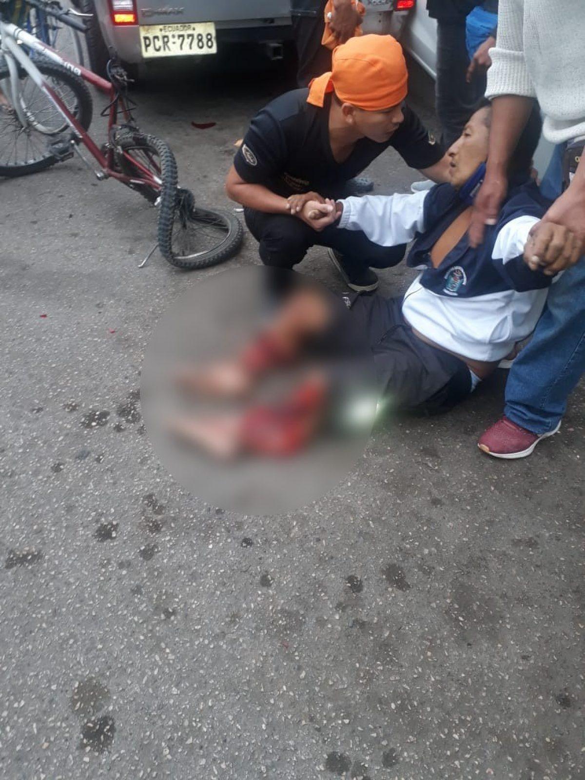 ¡Terrible accidente! Carro destroza piernas de hombre que estaba en su bicicleta