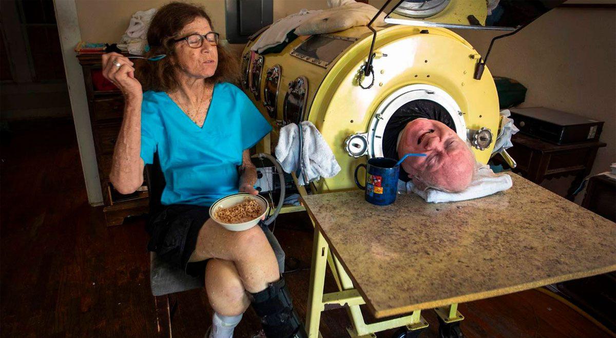 El hombre que ha vivido por 70 años con un pulmón de acero