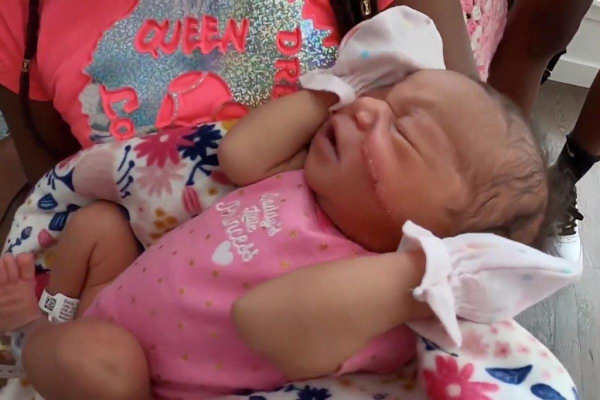 Le cortaron la cara a una bebé durante una cesárea de emergencia