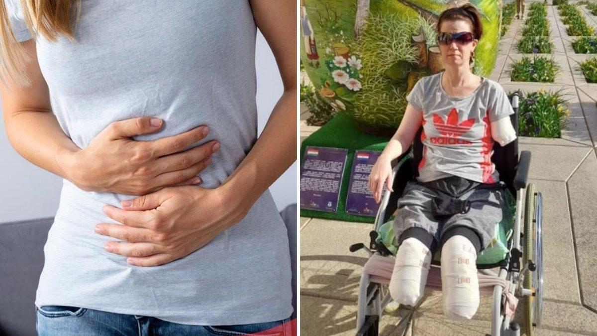 Fue al hospital por un dolor de estómago y le amputaron ambas piernas y un brazo