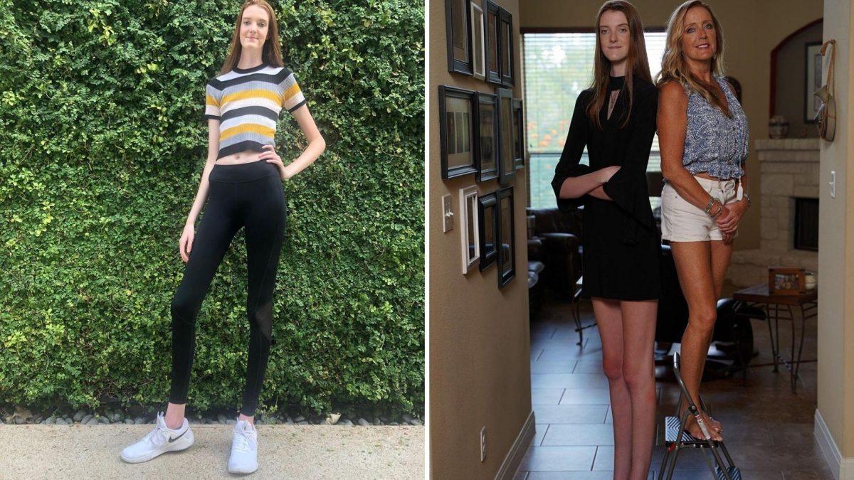 Una adolescente rompe dos récords mundiales por tener las piernas más largas del mundo