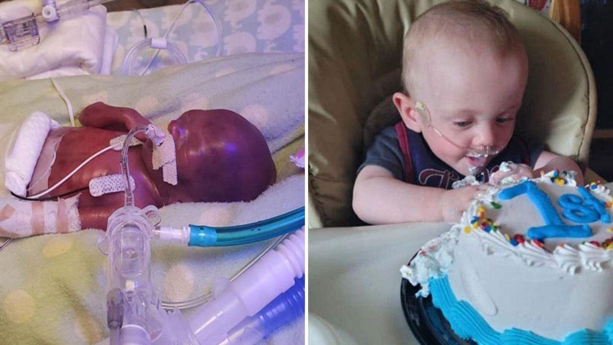 El bebé más prematuro del mundo festejó su primer cumpleaños