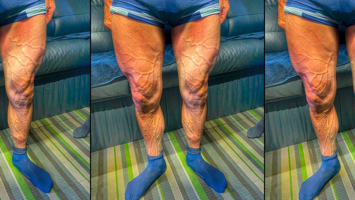 FOTO: Un ciclista muestra sus piernas con las venas 'a punto de estallar' durante la Vuelta a España