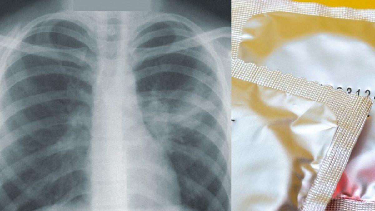 Creían que tenía tuberculosis pero era un preservativo en su pulmón