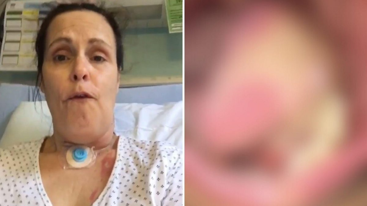 Mujer que recibió injerto de piel en la lengua ahora le están saliendo pelos