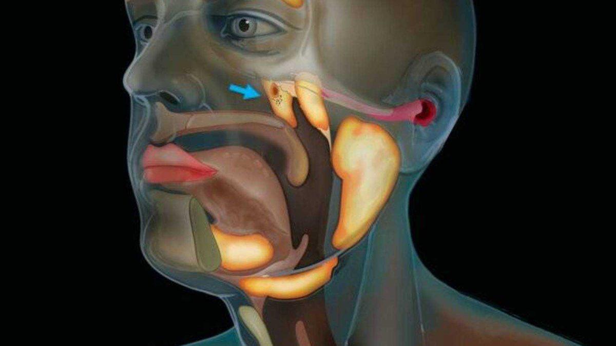 Descubren posible nuevo órgano en la garganta humana