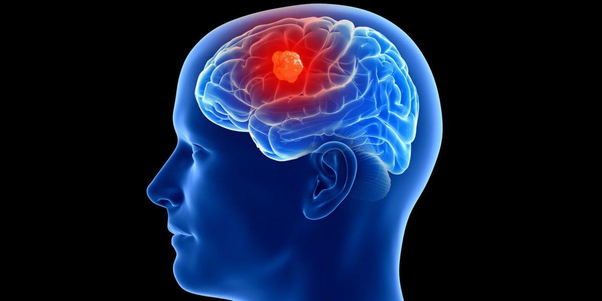 Descubren parásito que podría estar relacionado con un raro cáncer cerebral