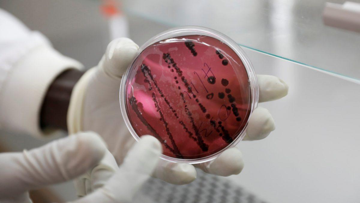 Un nuevo virus letal que se contagia de persona a persona prende las alertas tras un brote en país de América Latina