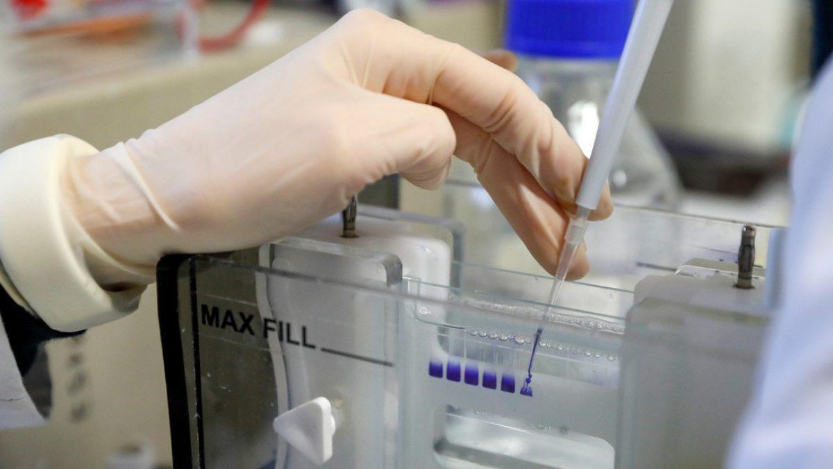 Rusia desarrolla un 'yogurt' contra el coronavirus que crea anticuerpos
