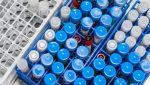 España autoriza el primer ensayo clínico de una vacuna contra el COVID-19 en el país